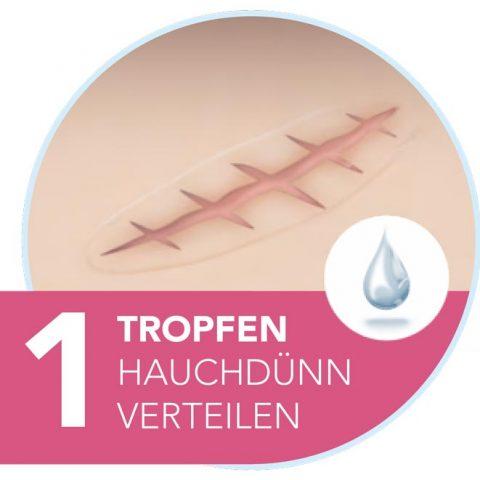 Narbenpflege: 1 Tropfen Narbengel